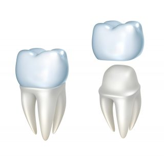 Dental crowns in Harrow