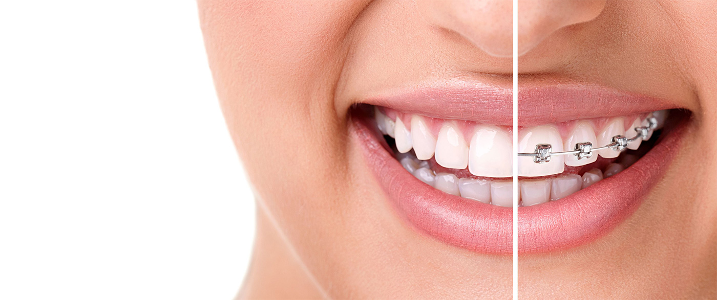 Benefits of Invisalign Braces in Harrow