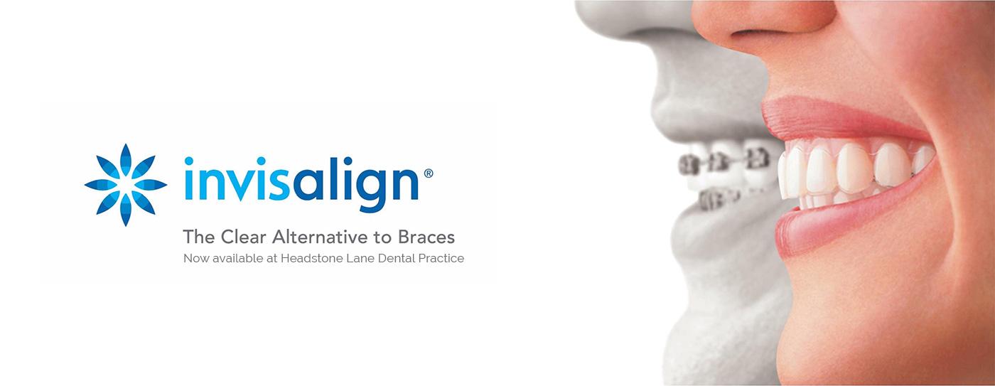 Invisalign Braces at headstone lane dental practice