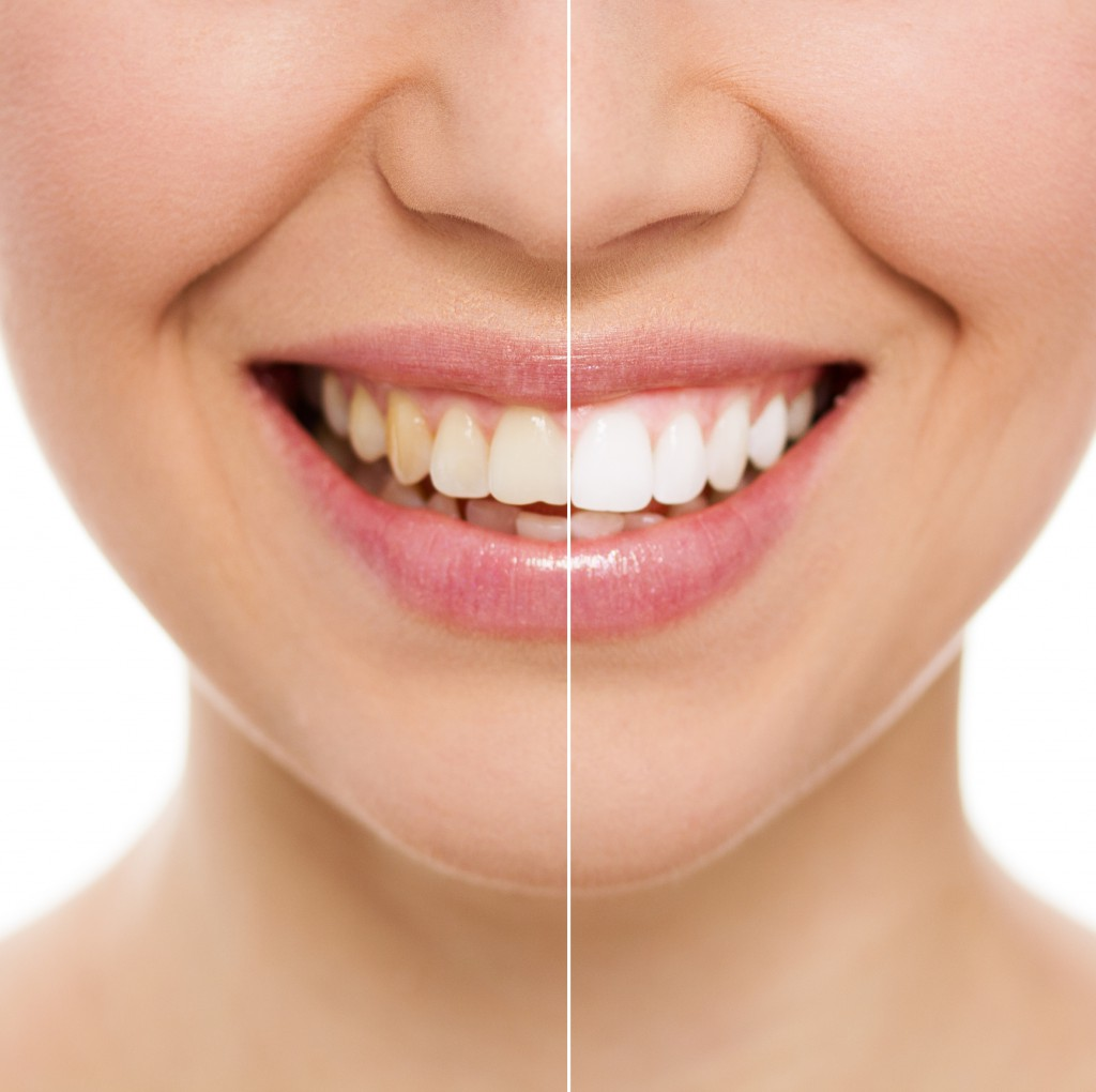 Generic-dentist_SMM_teeth-stain-before-after_20180131.jpg